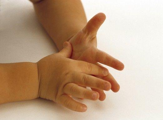 Потливость рук у детей