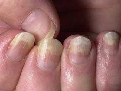 Рекомендации ухода за ногтями