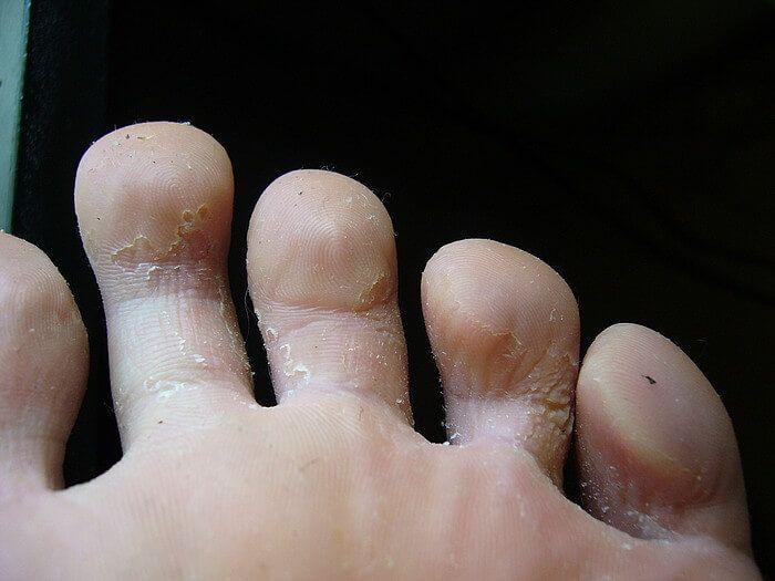Потеют пальцы ног причины