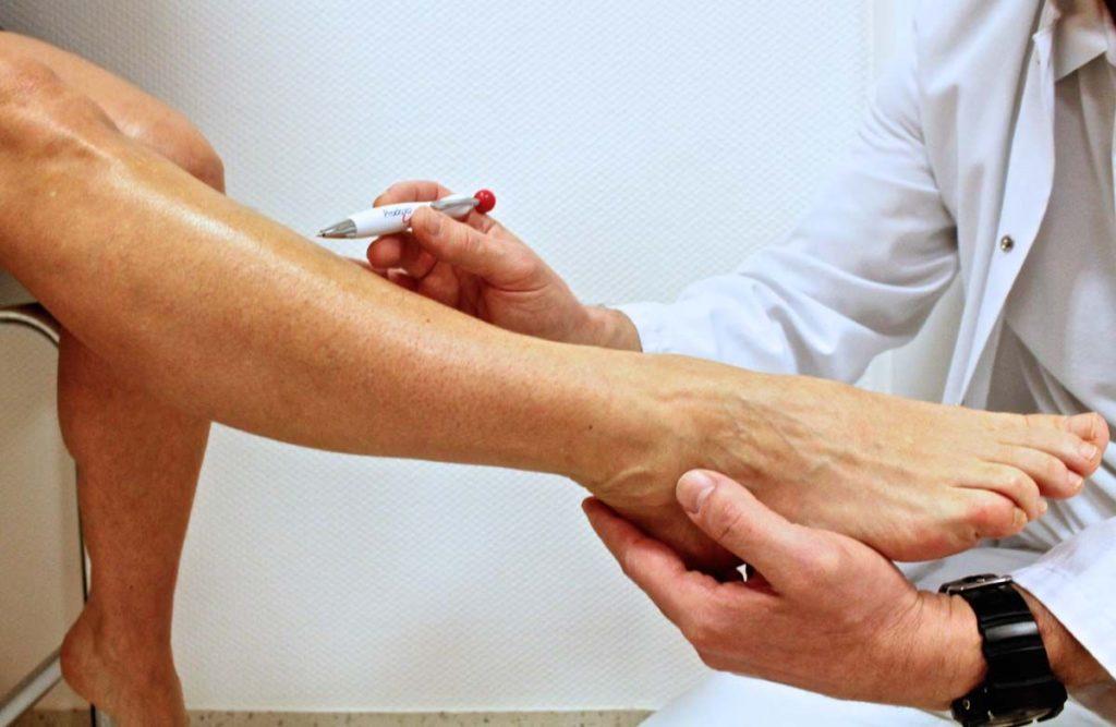 Диагностика гипергидроза ног и мужчин