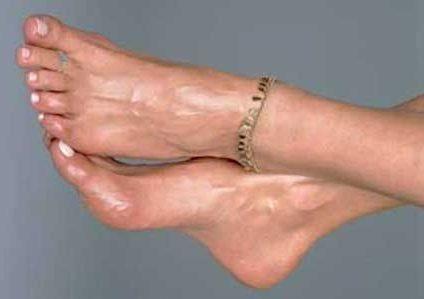Как избавиться от потливости ног в домашних условиях? Рецепты и советы по избавлению от потливости ног с помощью аптечных и народных средств