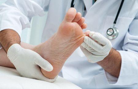 Лечение потливости ног