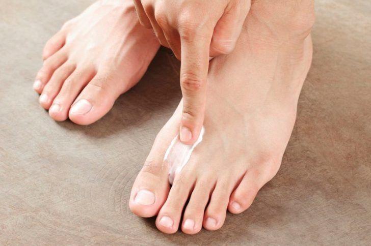 Лечение грибка под ногтем