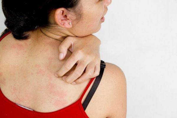 Потливость спины из-за другой болезни