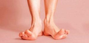 Лечение гипергидроза ног