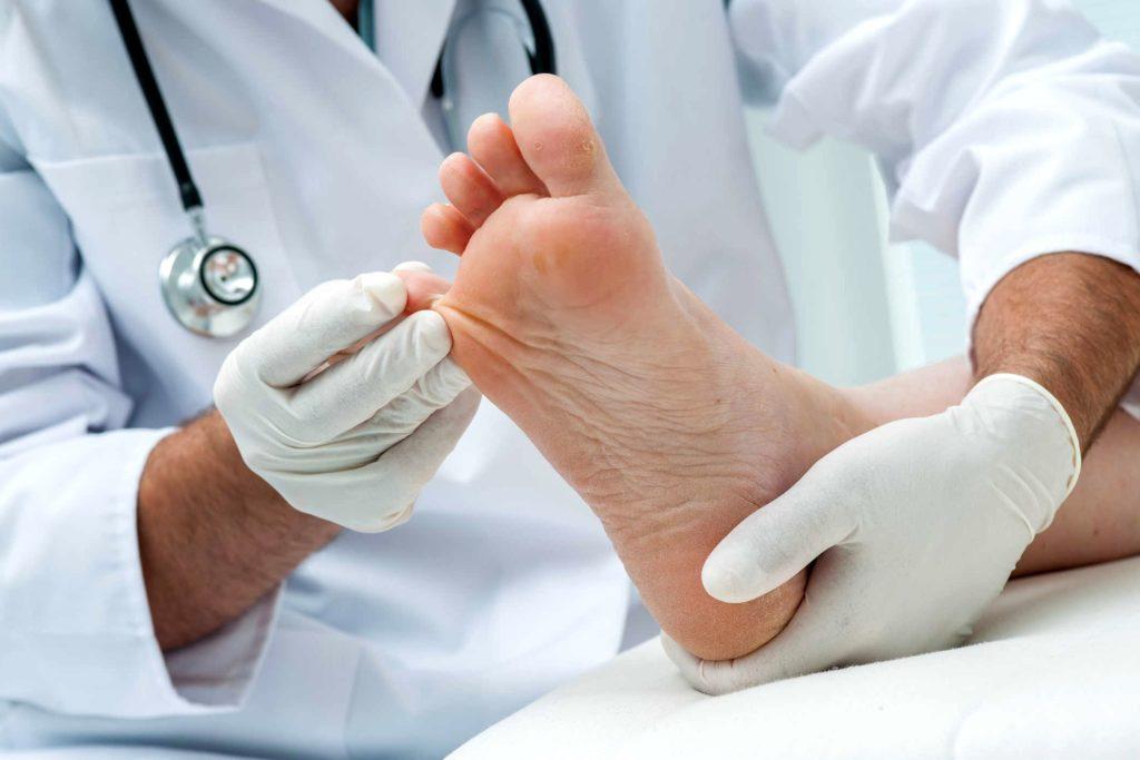 диагностика и лечения гипергидроза ступней и ладоней