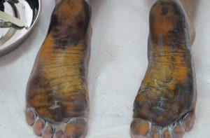 Проба Минора ног