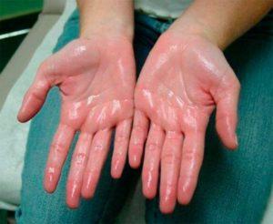 руки пахнут уксусом