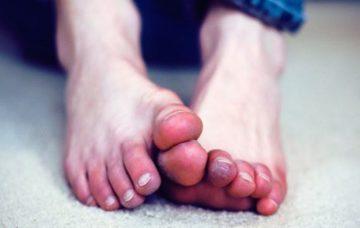 Постоянно мокрые и влажные ноги причины и лечение