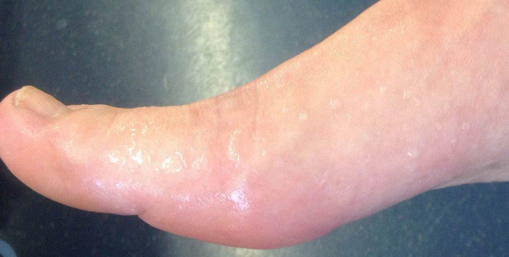 Проблема гипергидроза ног