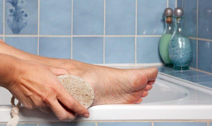 Почему воняют ноги и как лечить