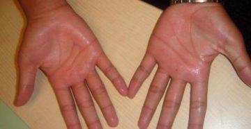 У подростка сильно потеют ладошки рук