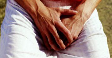 Почему потеет область мошонки у мужчин
