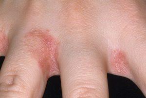 Признаки опрелостей пальцев рук