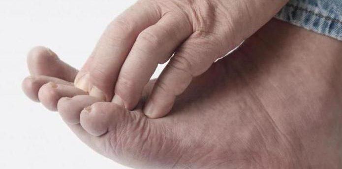 Как лечить опрелости зуд и запах между пальцами ног
