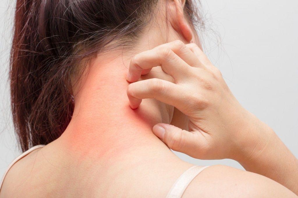 Аллергические реакции зуд