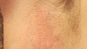 При аллергии