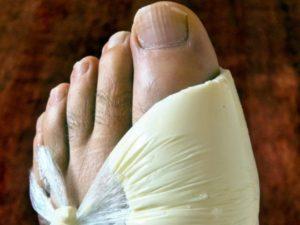 компрессы, потливость ног